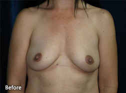 Breast Augmentation Patient 23582 Before Photo # 1