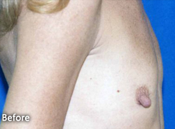 Breast Augmentation Patient 47293 Before Photo # 1