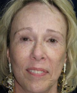 Facelift Patient 88539 After Photo # 2