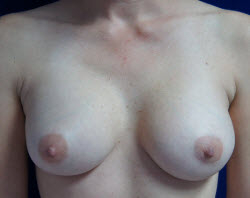 Breast Augmentation Patient 68938 After Photo # 2