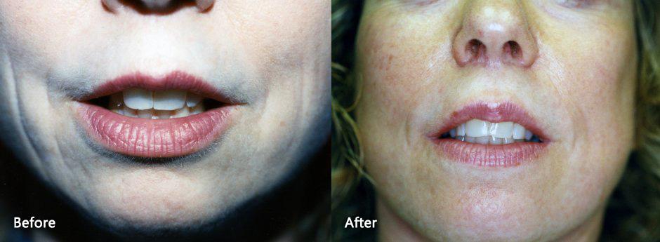 Lip Enhancement & Rejunivation Danville