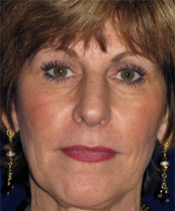 58-year-old 1 year before face and neck lift surgery